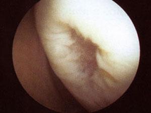 Gelenkspiegelung Knie Bild 4