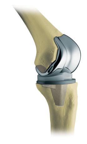 Knie_Implantat